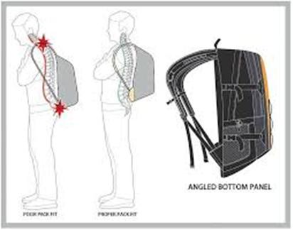 Không chọn đúng loại balo có thể dẫn tới đau mỏi lưng và vai gáy